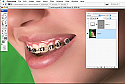 Removing Braces in Photoshop